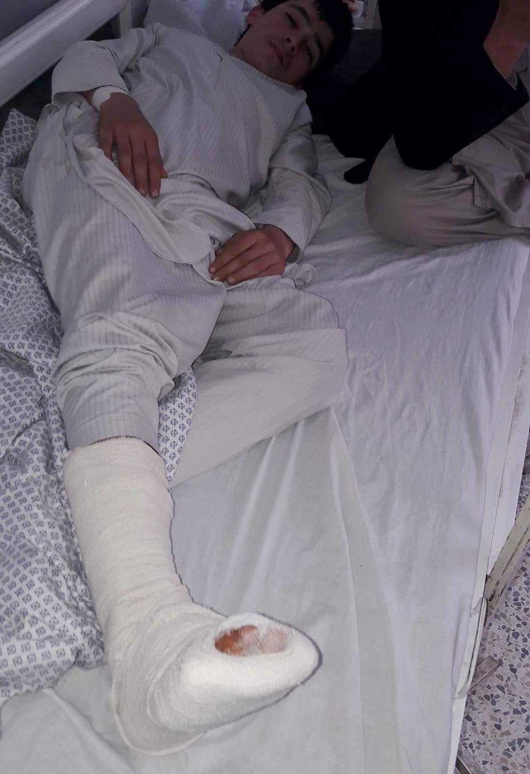Mirzads Bruder - musste nach dem Angriff der Taliban eine Woche im Spital bleiben