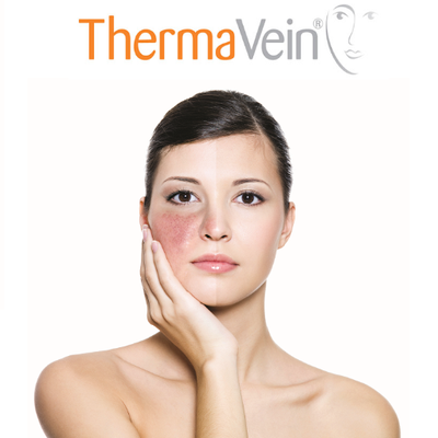 Thermavein - Facial vein reduction treatment