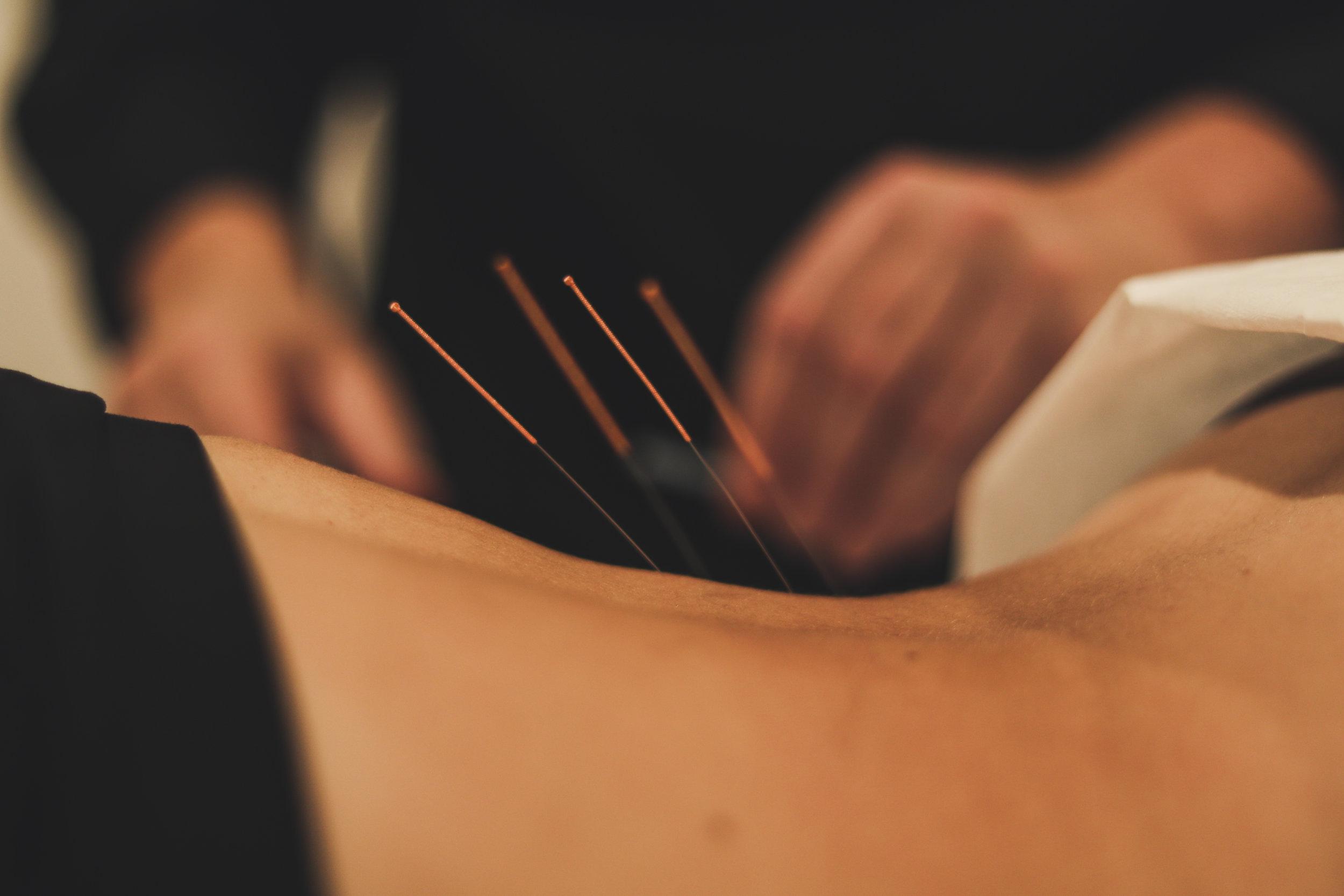 ACUPUNTURE - L'Acupuncture est un système thérapeutique dont les origines historiques sont très liées avec la tradition médicale chinoise. L'acupuncture consiste en une stimulation de zones précises de l'épiderme. Les techniques de stimulation des points d'acupuncture sont effectuées avec des moyens divers : des aiguilles le plus souvent, mais aussi d'autres moyens physiques (mécaniques, électriques, magnétiques, thermiques, lumineux) ou physico-chimiques.