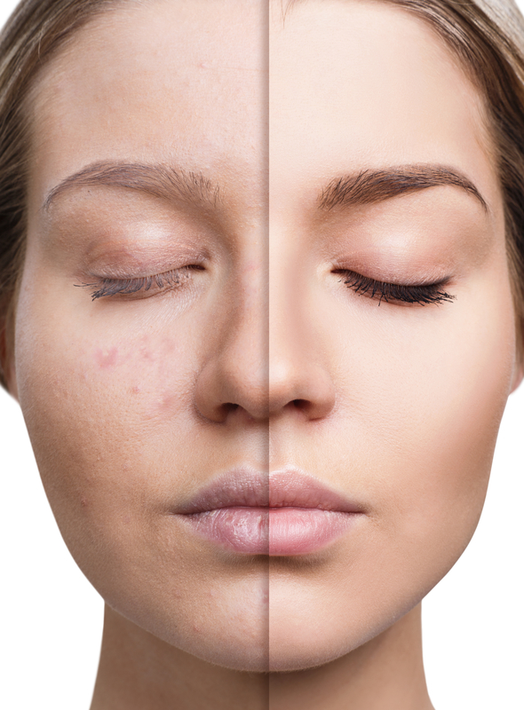 anti aging facial.jpg