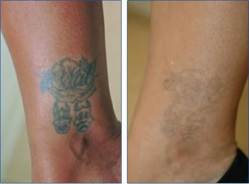 tattoo removal2.jpg