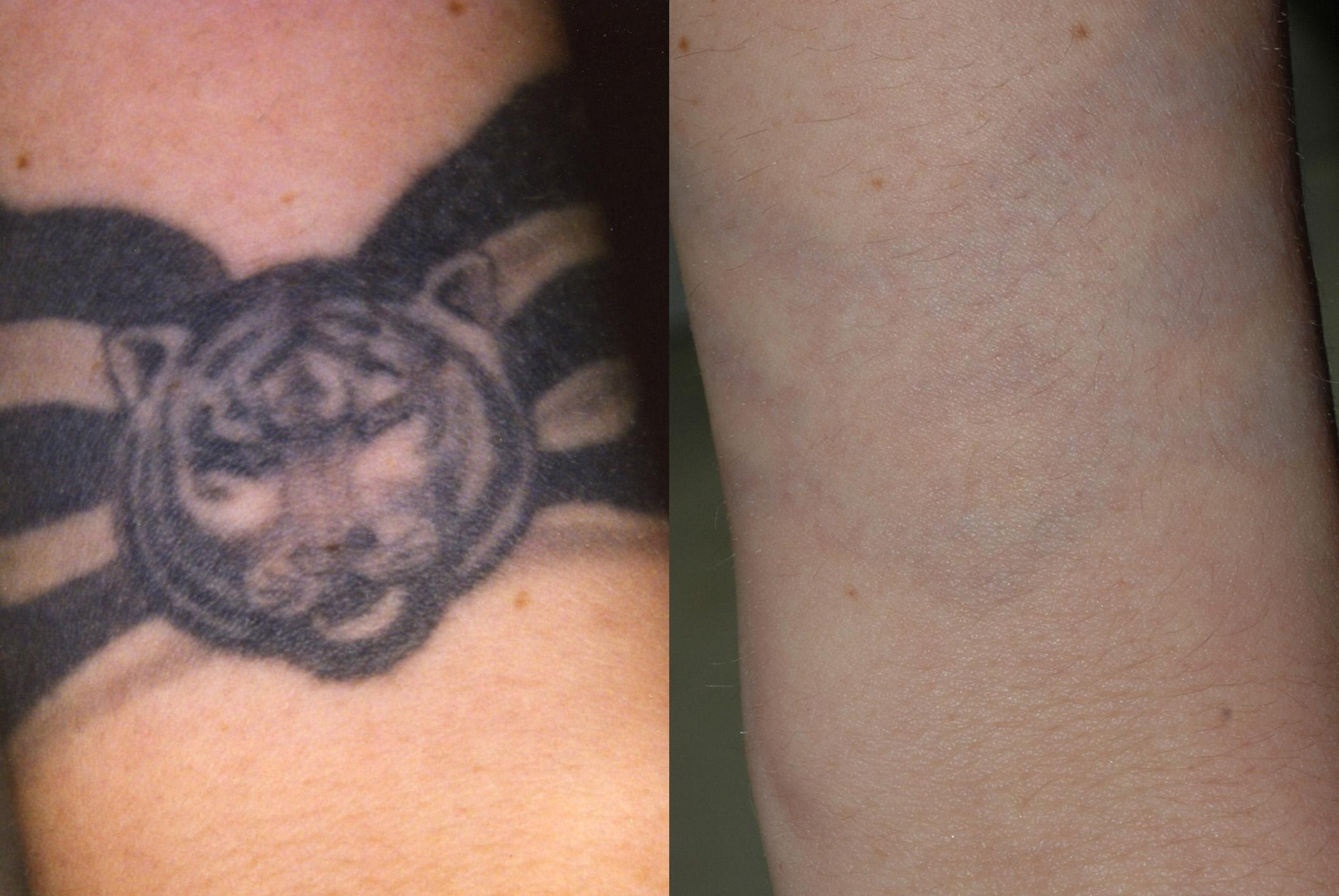 tattoo removal1.jpg
