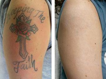Tattoo removal 3.jpg