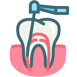- Root Canal
