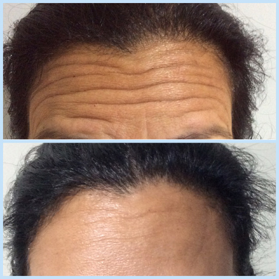 Forehead line reduction with anti-wrinkle injections