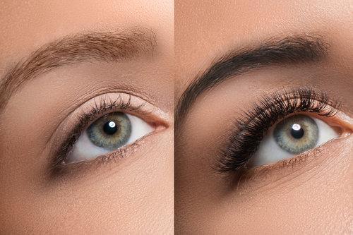 Cosmetic eyebrow tattoos