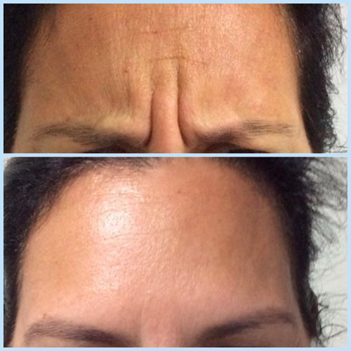Frown line removal before and after