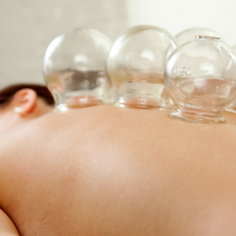 Cupping - Cupping is a Chinese massage. Cups are heated and placed on the skin. As the air cools a natural suction takes place. When the skin is oiled the cups can be moved. This offers a