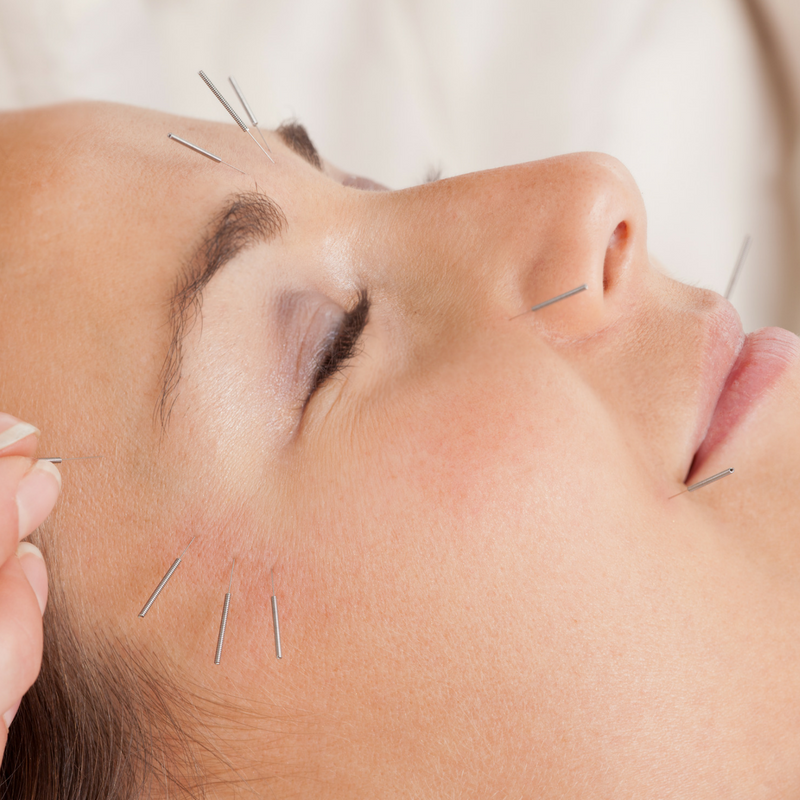 Facial Renewal - Facial Cosmetic Acupuncture is gaining popularity globally. It affects facial elasticity by restoring resting mimetic muscle tone through the insertion of needles into the muscles of the head, face, and neck.