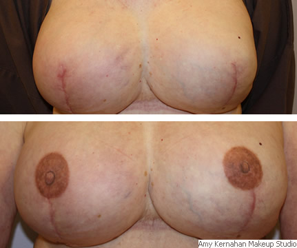 breast_before_after2.jpg