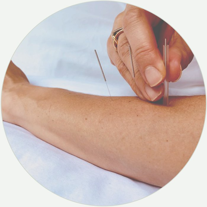 circle-acupuncture.jpg