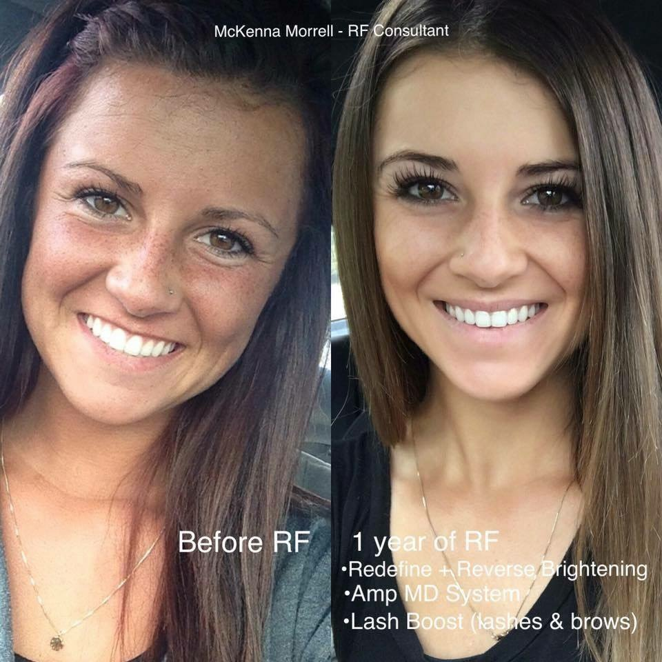 She's beautiful in the first picture… But WOW.  It's amazing what taking care of your skin can do at even a young age.