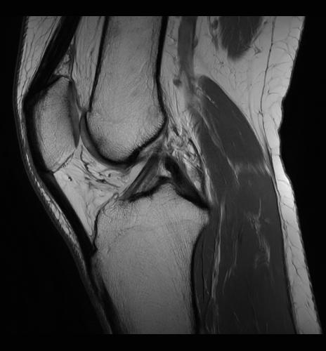 MRI 2.png