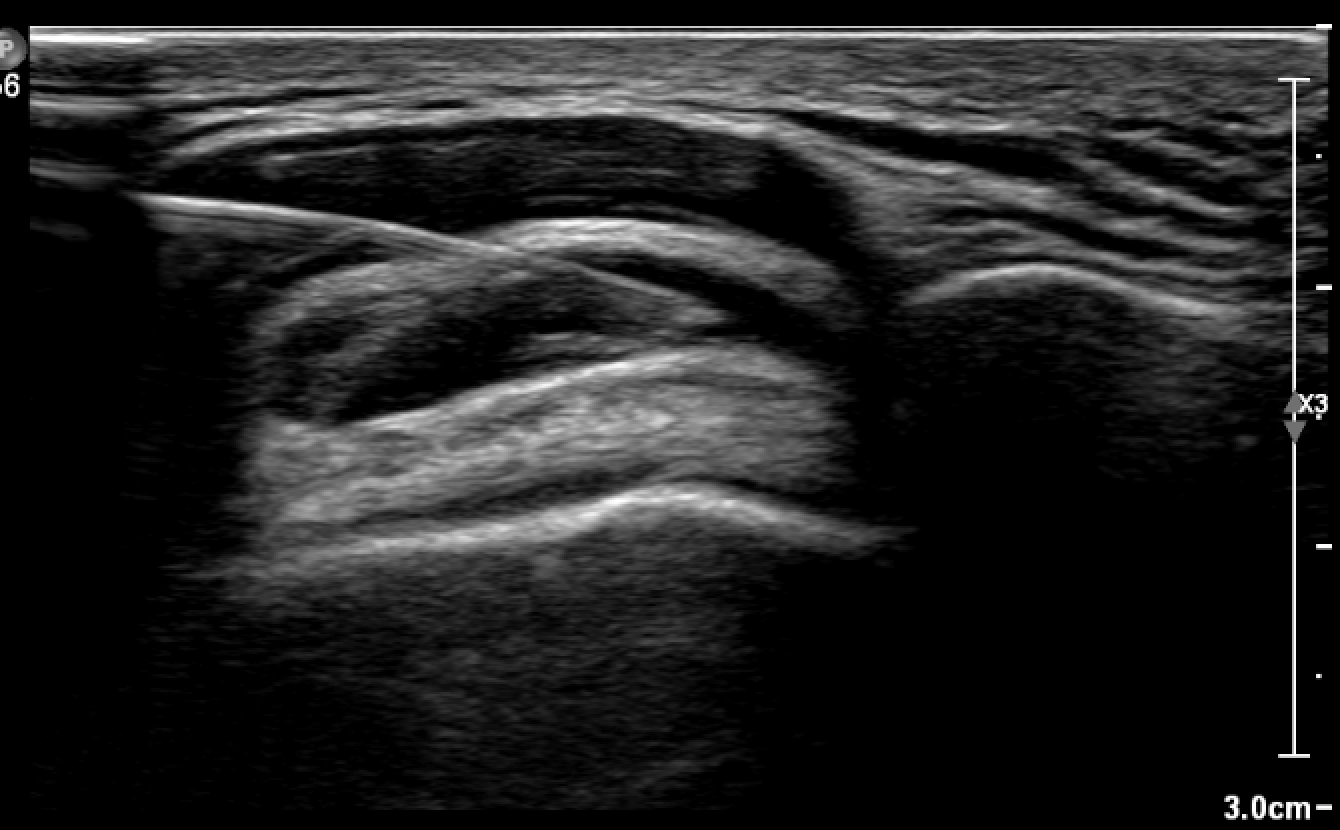 Subacromial Bursa US Guided Injection