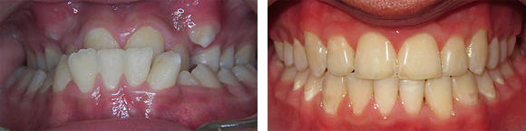 01 Before & After Orthodontics.png