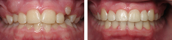 03 Before & After Orthodontics.png