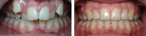 04 Before & After Orthodontics.png