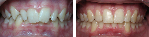 05 Before & After Orthodontics.png
