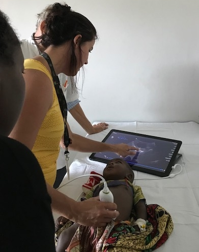 New ultrasound equipment in Malawi was immediately put to use to diagnose a bowel blockage in a small child at the Mercy James Centre for Paediatric Surgery and Intensive Care