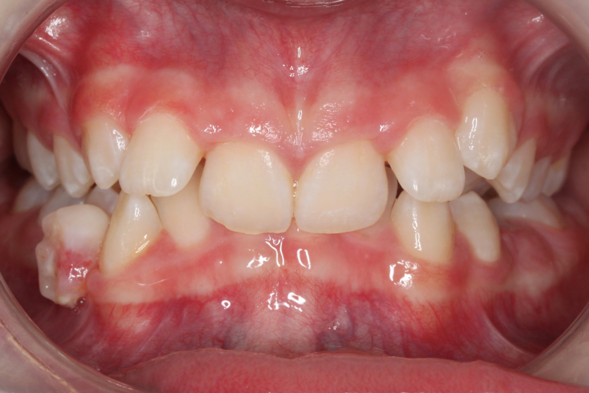 JSFrontal Intraoral PhotoINITIAL.jpg