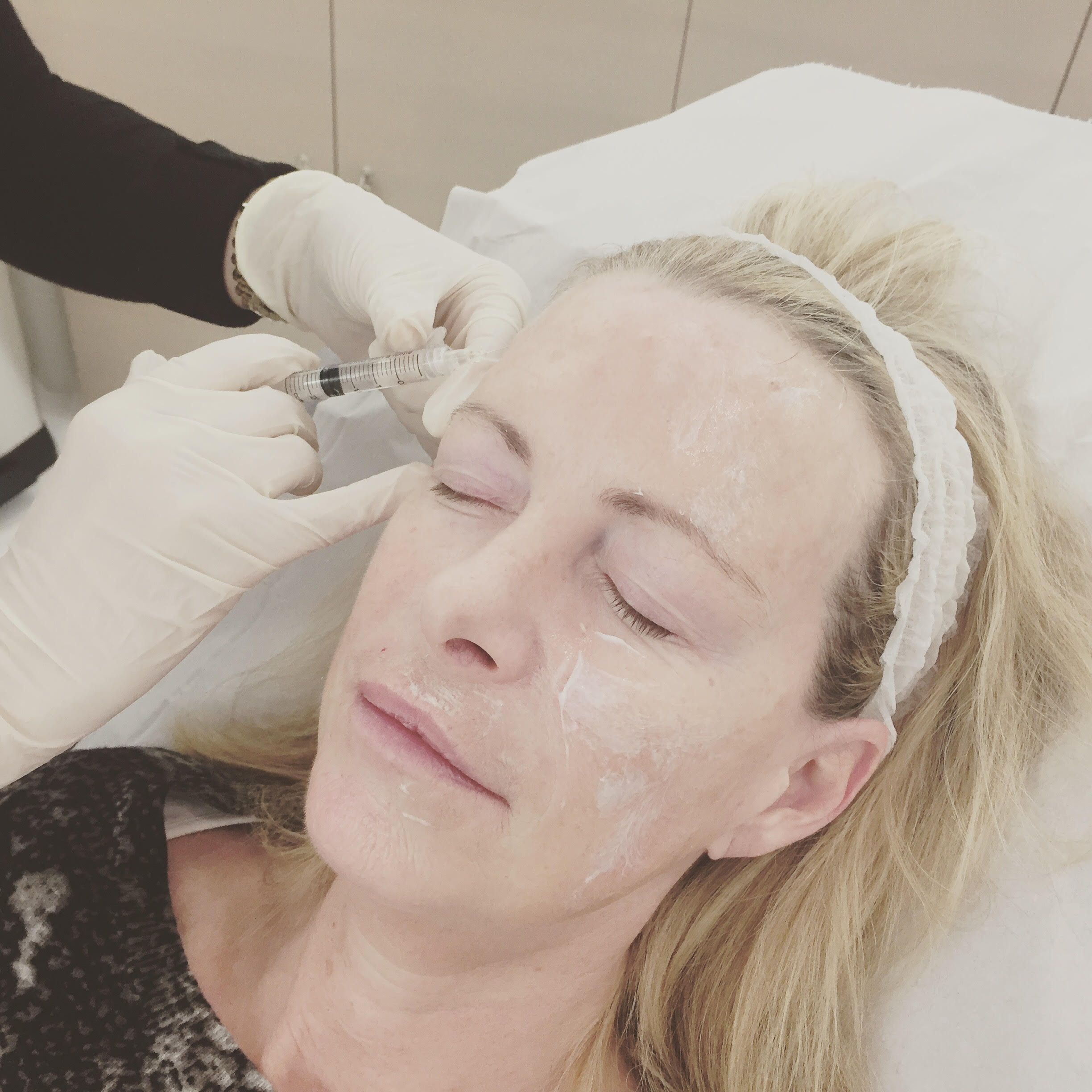 Editor's Beauty Director, Alicia took her mother to test out the effects of Mesotherapy.