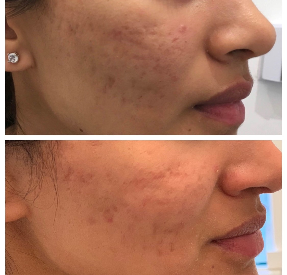 Before and after results of Microneedling on acne scars, at Regent's Park Aesthetics