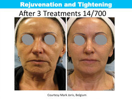 Impressive results before and after the Tixel.