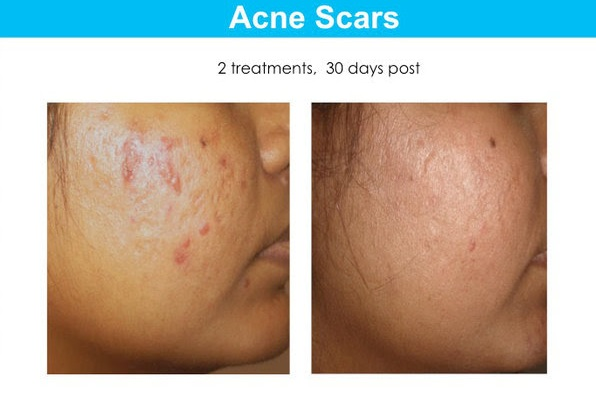 Results showing acne scars before and after the Tixel.