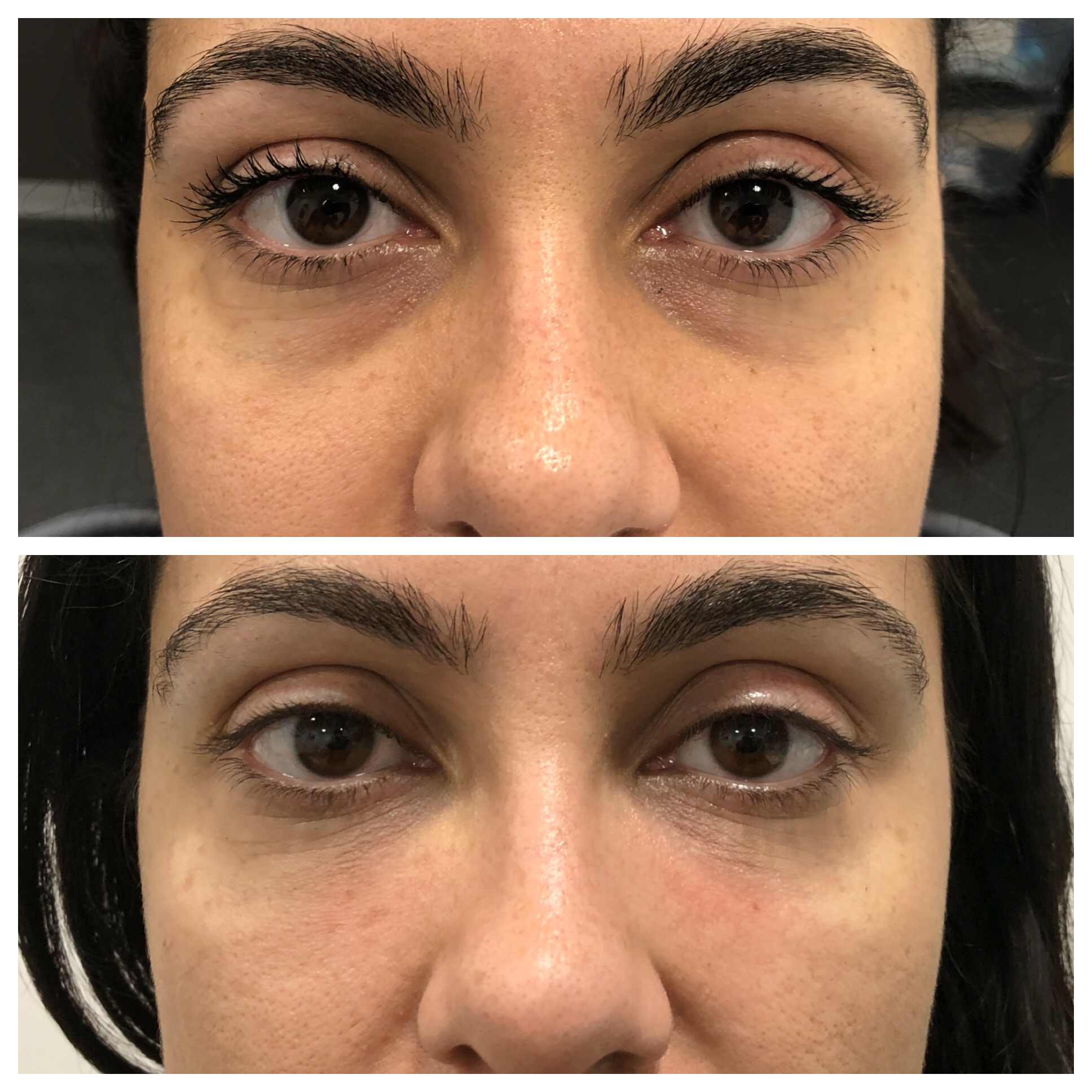 Before and after Tear Trough Treatment with Dr Pamela Benito.