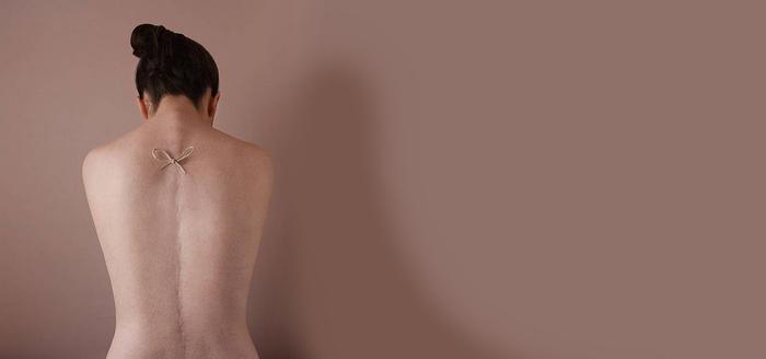 Удаление шрамов, рубцов, растяжек