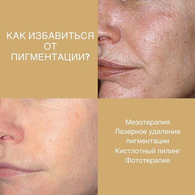 🔸Как избавляют от пигментации? В клинике БРАВА вам могут предложить такие методики: ⠀ 🔸Мезотерапия. Процедура универсальная, так как эффект от нее достигается благодаря введению в кожу специальных коктейлей. Производятся и коктейли для избавления от пигментации. Мезотерапия эффективна, для получения нужного результата достаточно до 5 процедур. ⠀ 🔸Лазерное отбеливание. Меланин, пигмент кожи, легко разрушается под воздействием лазерного луча. При этом окружающая, нормально окрашенная кожа, не подвергается воздействию. Уже после первого сеанса пятна заметно светлеют. ⠀ 🔸Кислотный пилинг.  Самыми «отбеливающими» являются молочная, койевая, гликолевая кислота (все это - органические кислоты). После курса пилингов исчезает пигментация, кожа увлажняется, становится более упругой. ⠀ 🔸Фототерапия. Удаление пигментных пятен светом дает быстрый и выраженный результат. По степени эффективности фототерапия сравнима с лазерной. ⠀ Все эти процедуры безопасны, преимущественно, не доставляют дискомфорта, имеют не длительный реабилитационный период. Желательно проводить их в осенне-зимний период, при минимальной активности солнца. ⠀ 🔸ЦЕНЫ Зона площадью до 3 см2 - 1100 руб. За каждый кв. сантиметр - 350 руб. Кисти рук -  3800 руб. Кисть руки - 2100 руб. Декольте - 4300 руб. ⠀ 📞Запись по тел.: +7 495 108 64 92 📍Адрес: Москва, ул. Мытная, 52 👣Мы находимся в пешей доступностиот станций метро Октябрьская, Добрынинская, Шаболовская ⏰График работы: 10:00-21:00 ⠀ #брава_клиника #эстетическаямедицинамосква #lpgмосква #контурнаяпластикамосква #лазернаяэпиляциямосква #эпиляциямосква #перманентныймакияжмосква #имиджклиника #чисткалицамосква