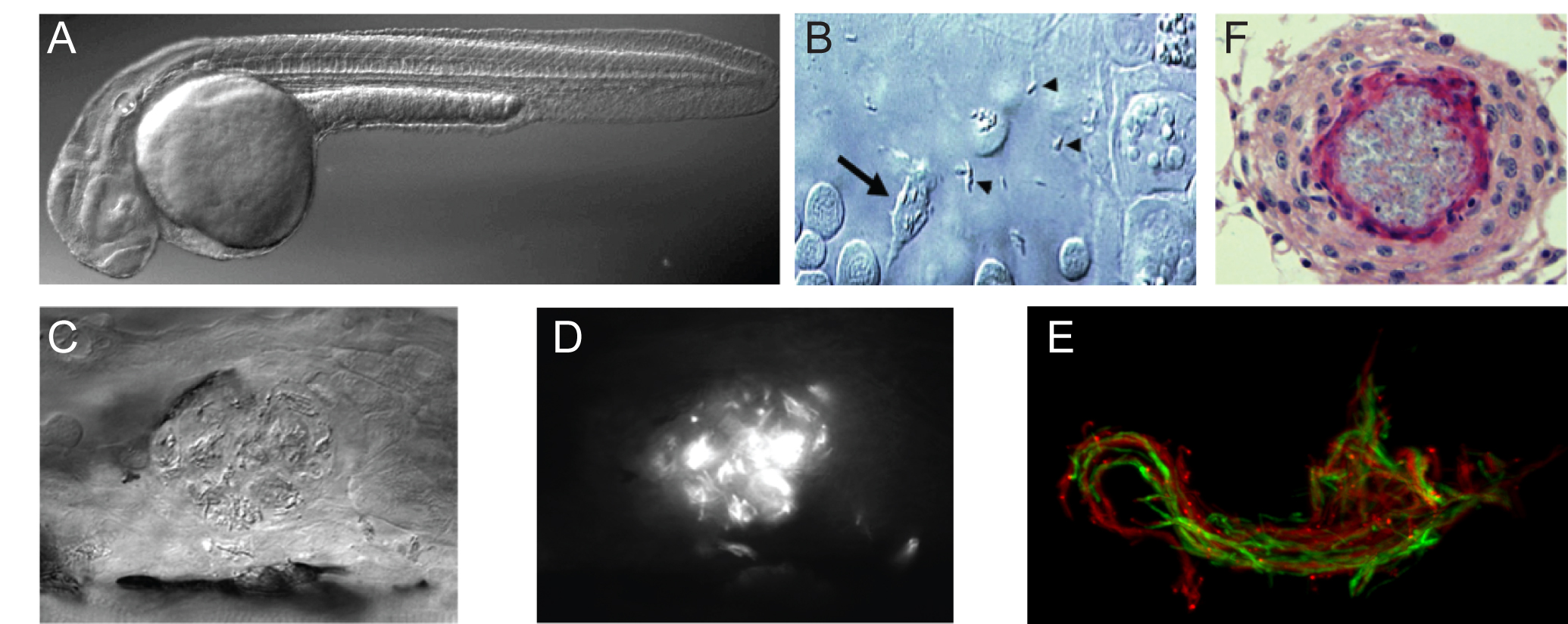 Pathogenic stages of  M. marinum  infection of zebrafish. (A) Optically transparent zebrafish larva. (B) Differential interference contrast (DIC) microscopy image of infected macrophage (arrow) phagocytosing extracellular mycobacteria (arrowhead). (C) DIC image of early granulomas. (D) Epifluorescent image of C showing fluorescently labelled M. marinum inside individual macrophages. (E) Confocal microscopy image of cording  M. marinum  (red and green fluorescent strains used to emphasize cording phenotype) in a 5dpi infected larva. (F) Immunohistology of a mature granuloma in an adult infected zebrafish at 8 weeks post infection