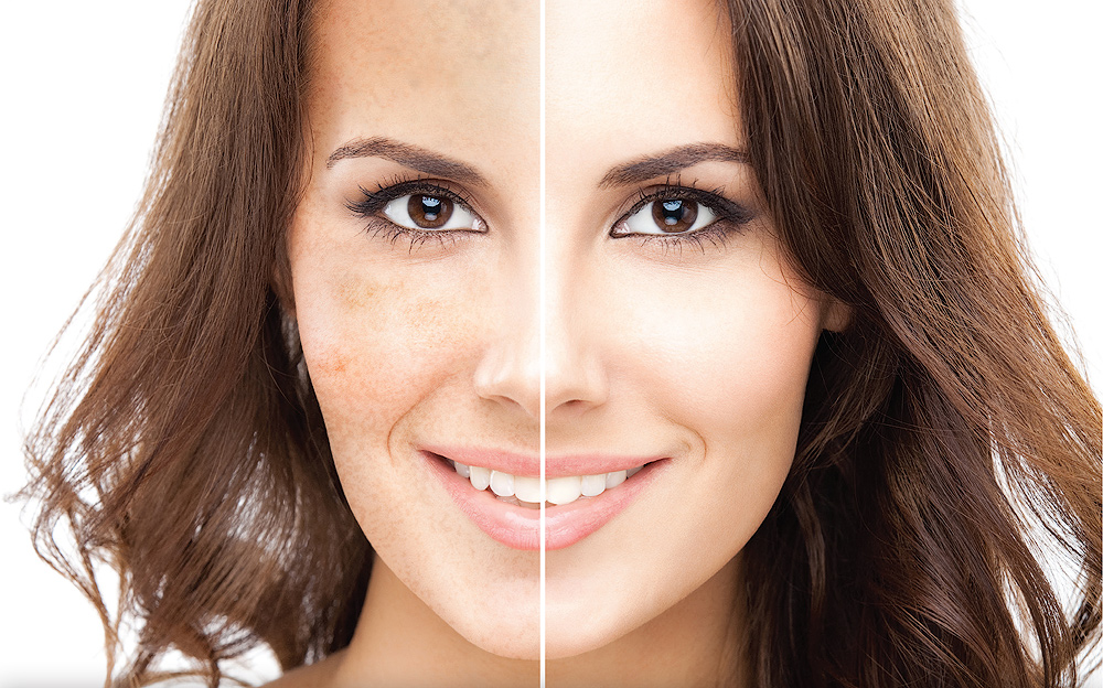 Give your skin that youthful look again with our PRP Treatment...