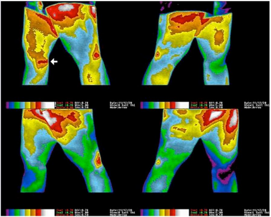 Figure 1.  Images of a 33-year-old woman who had a gymnastics injury at age 15 and subsequent 18-year history of chronic right knee pain, swelling, and instability. Top row images taken in walking position to show inside of both knees. Arrow points to exact location of patient's pain and shows significant inflammation. Lower images taken after 30 minutes of exposure to grounding in clinic using a conductive patch. Note significant reduction of inflammation in knee area. After 6 days of grounding, patient reported a 50% reduction in pain. After 4 weeks of treatment, patient was able to play soccer, and by 12 weeks she went waterskiing.