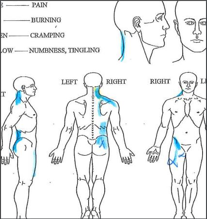 Figure 2.  XX showing less pain and x's represent the most significant tenderness and also the locations of trigger point injections.