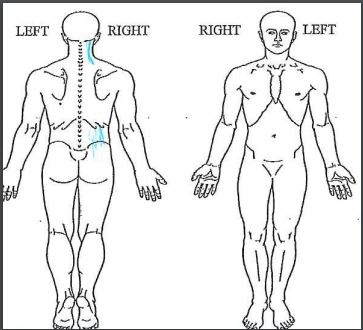 Figure 4:  She is mostly pain free and has returned to her most important physical activities.