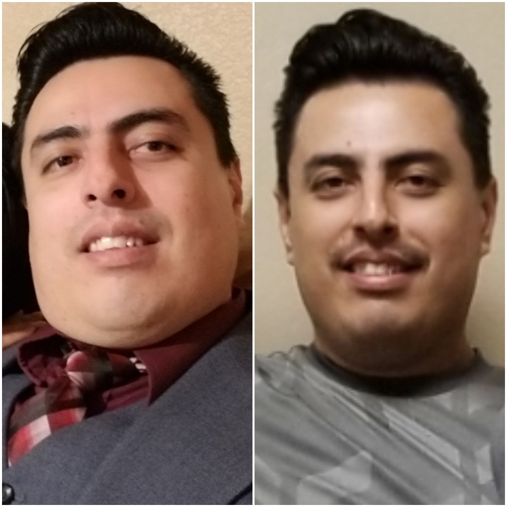 Alex before and after face.jpg