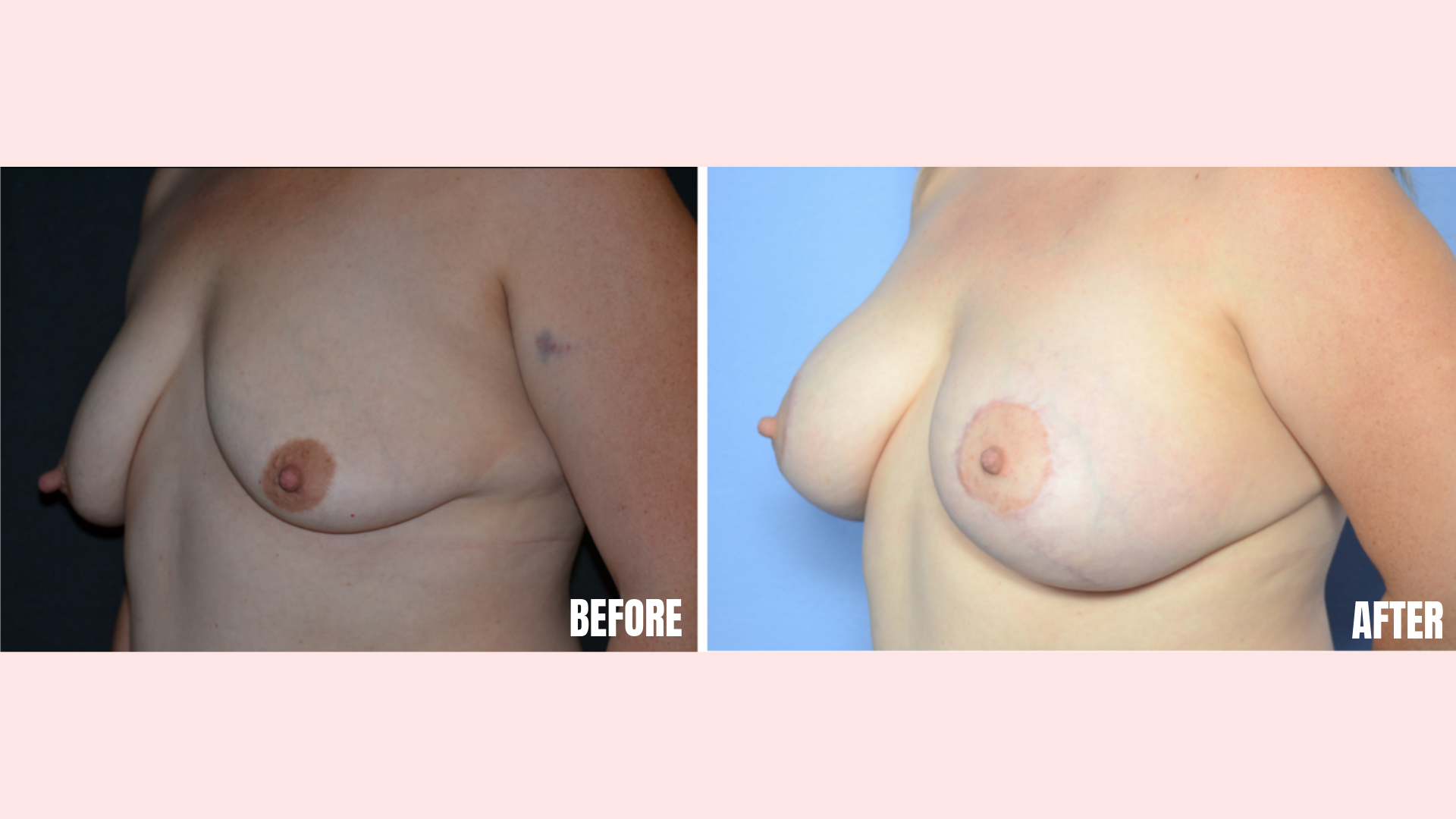Breast Augmentation with Mastopexy (Lift)