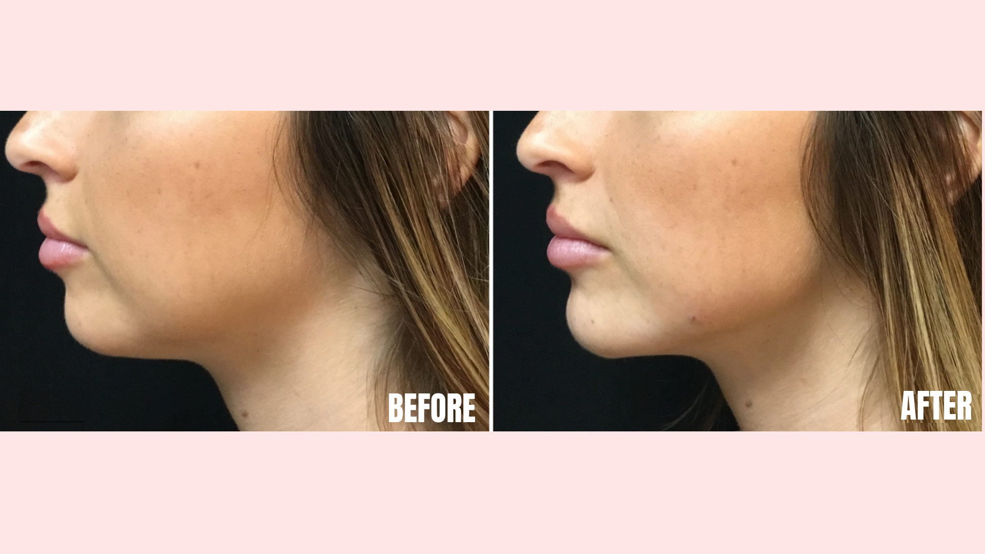 Filler in Chin and Jawline