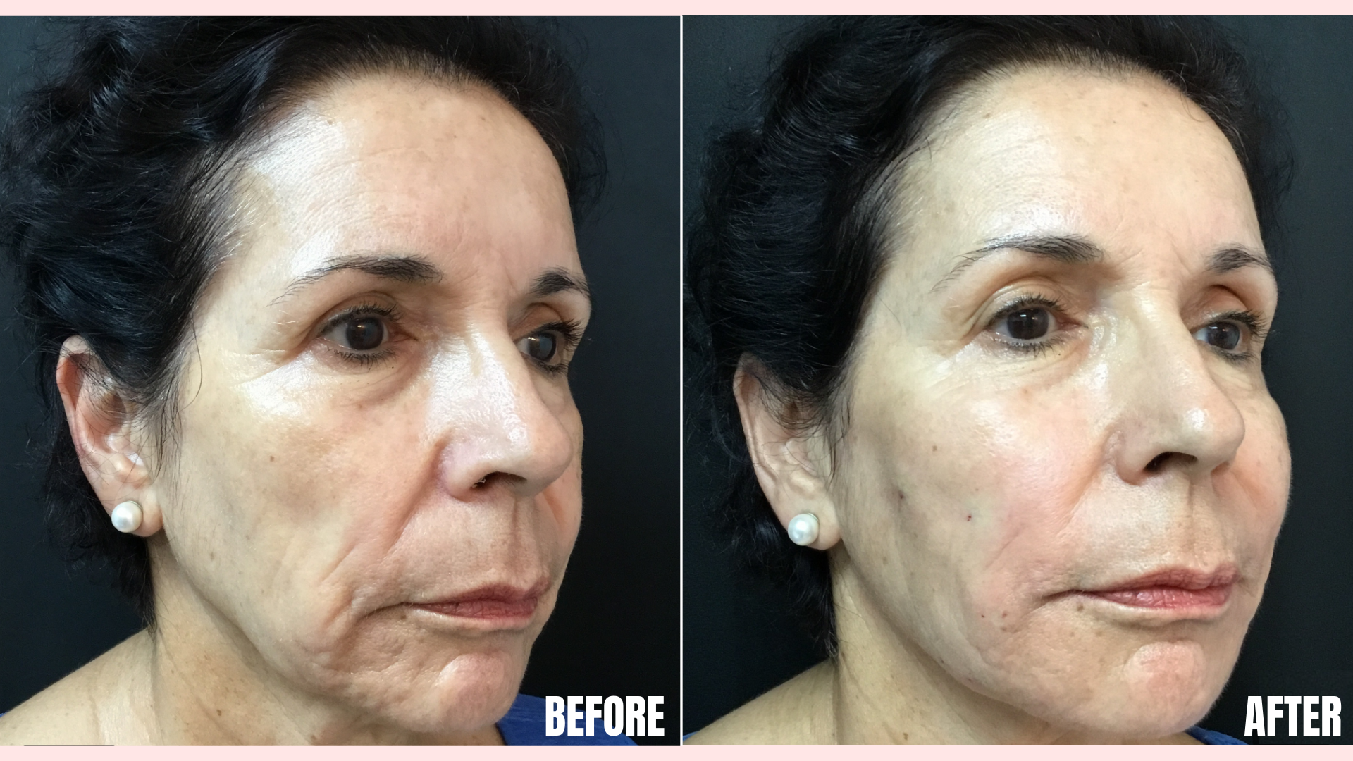 Bellafill in Tear Troughs, Nasolabial Folds, Cheekbones, Jawline, and Marionette Lines.