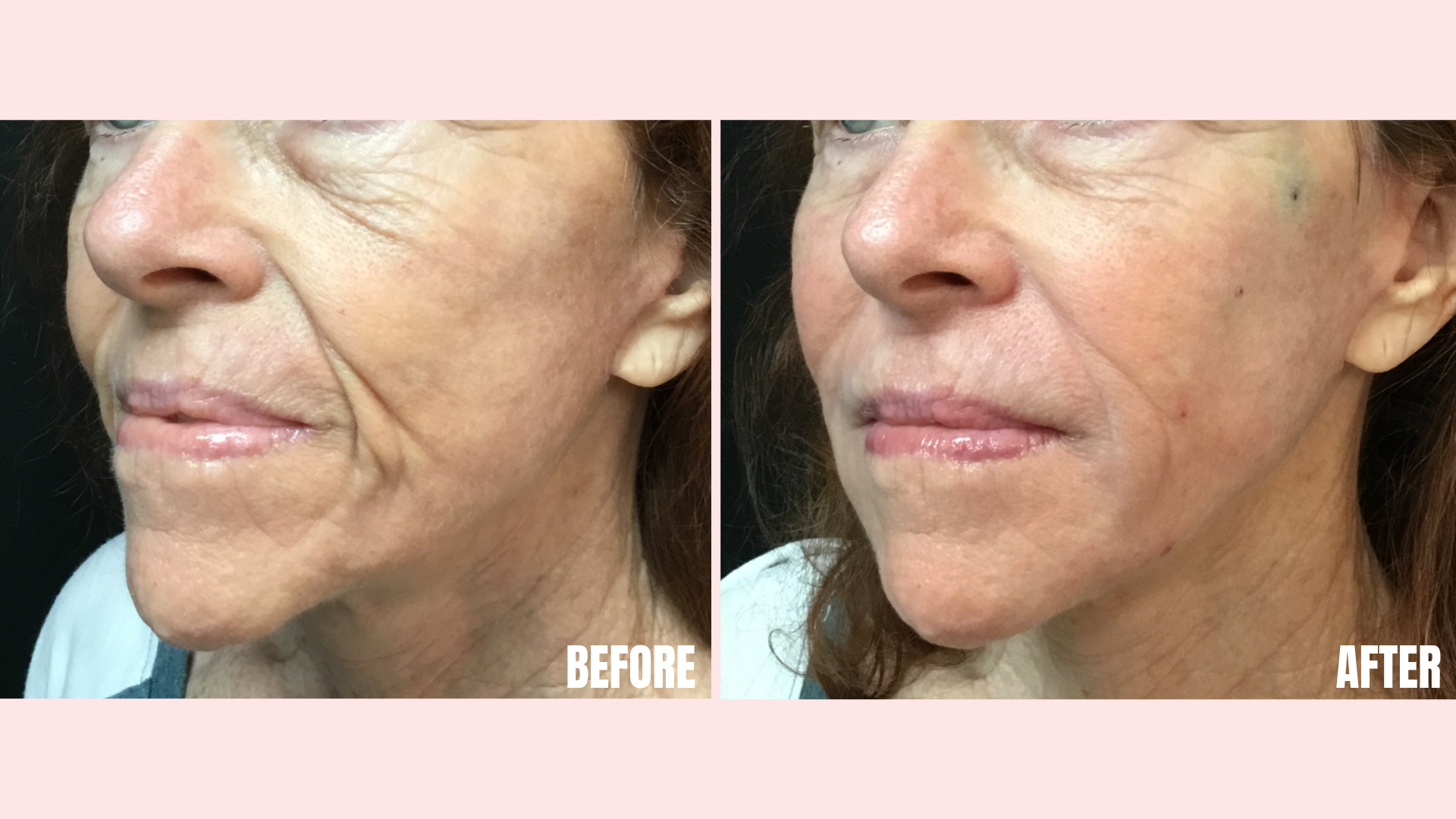 Bellafill in the Nasolabial Folds, Marionette Lines, Tear Troughs, and Jawline.