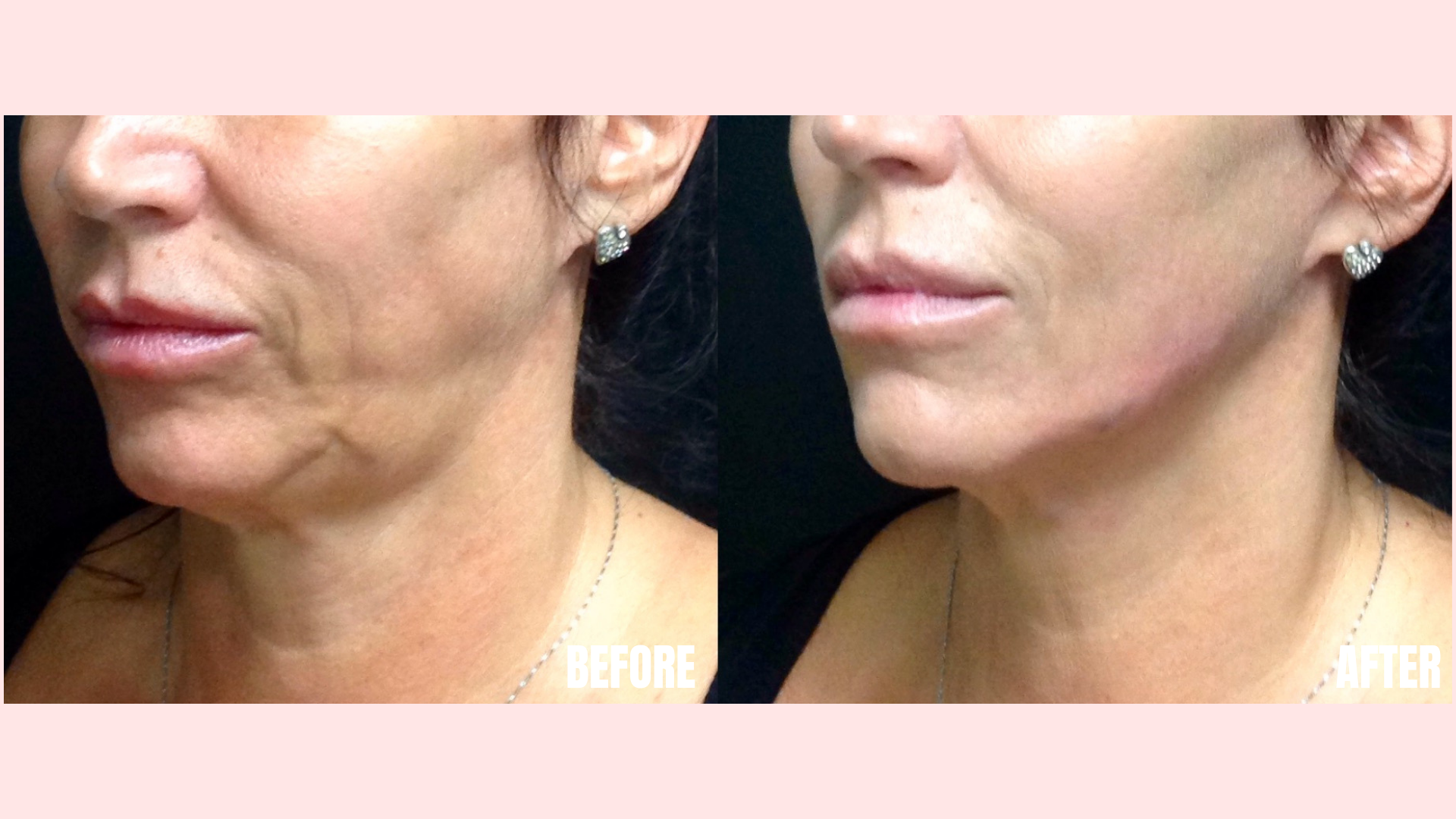 Filler in Nasolabial Folds, Jawline and Chin.