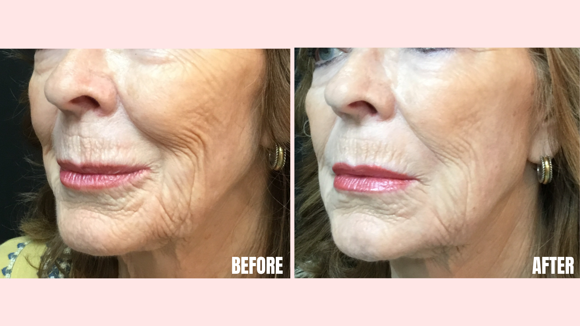 Filler in Tear Troughs, Nasolabial Folds, Marionette Lines, Jawline and Chin.