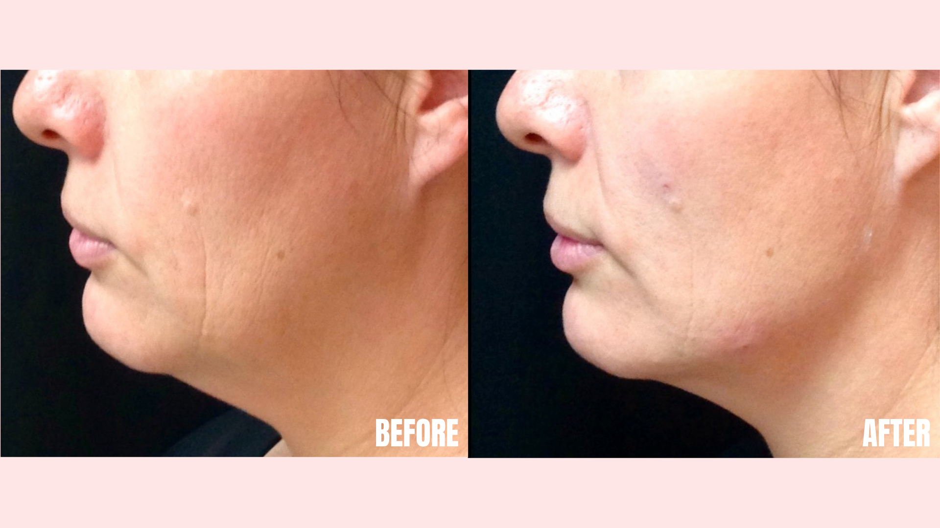 Filler in Jawline and Chin.