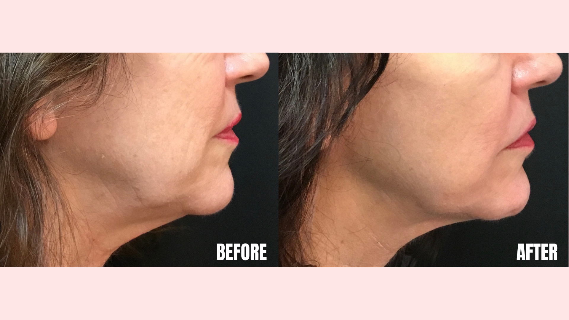 Lower Face Ultherapy