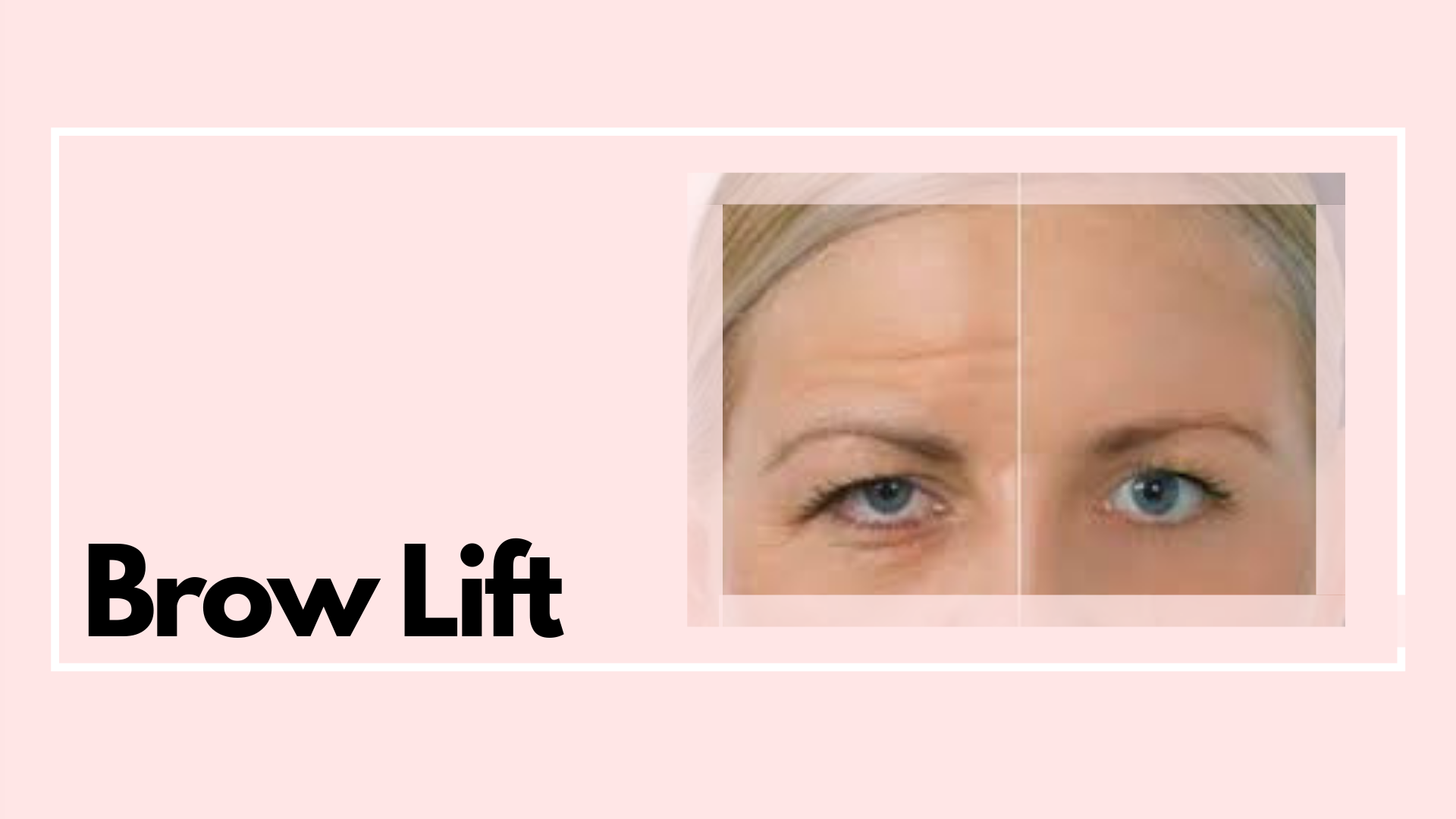 A brow lift is the perfect way to improve the appearance of your forehead and eyes. Low brows are instantly lifted to reveal a more youthful appearance.