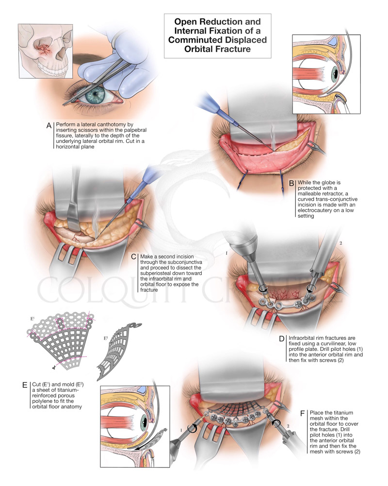 Infraorbital Rim Fixation