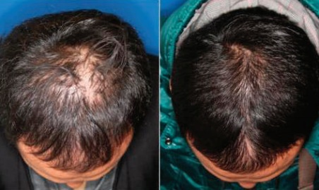stem+cell+hair.jpg