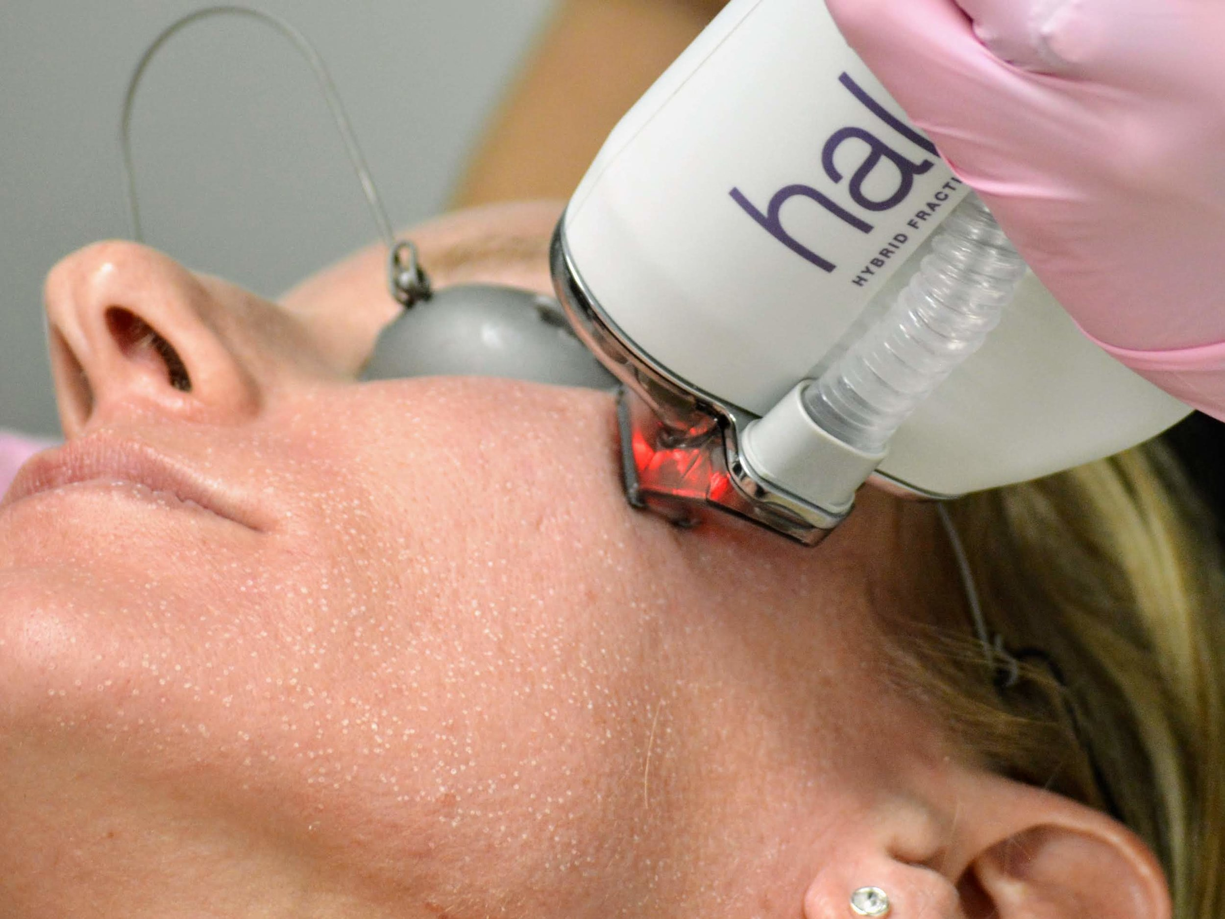 Halo laser skin resurfacing procedure in our med spa