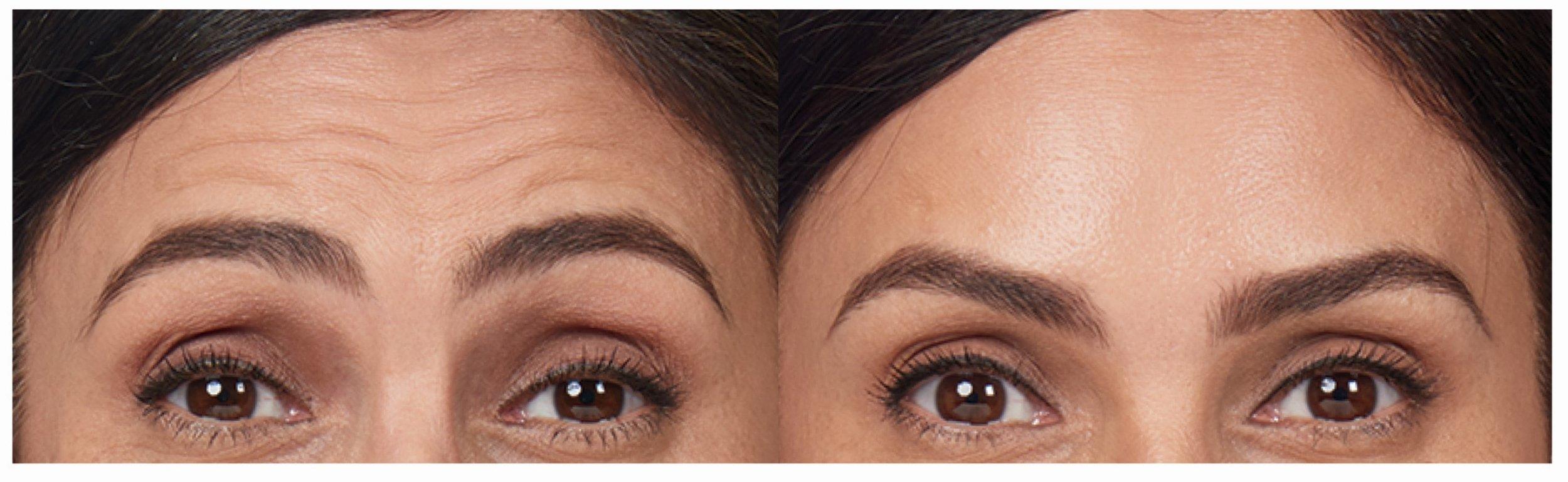 botox-forehead-lines.jpg